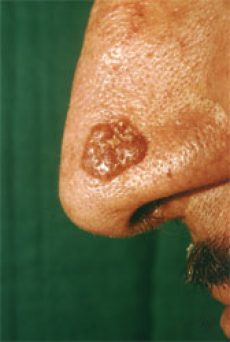 Basal Cell Carcinoma image