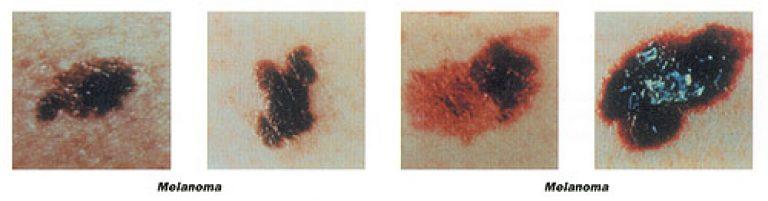 melanoma image